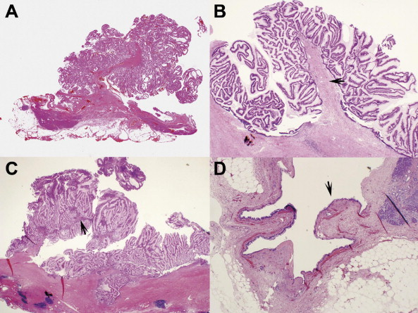 Histologic and imaging features of mural nodules in for Mural nodule