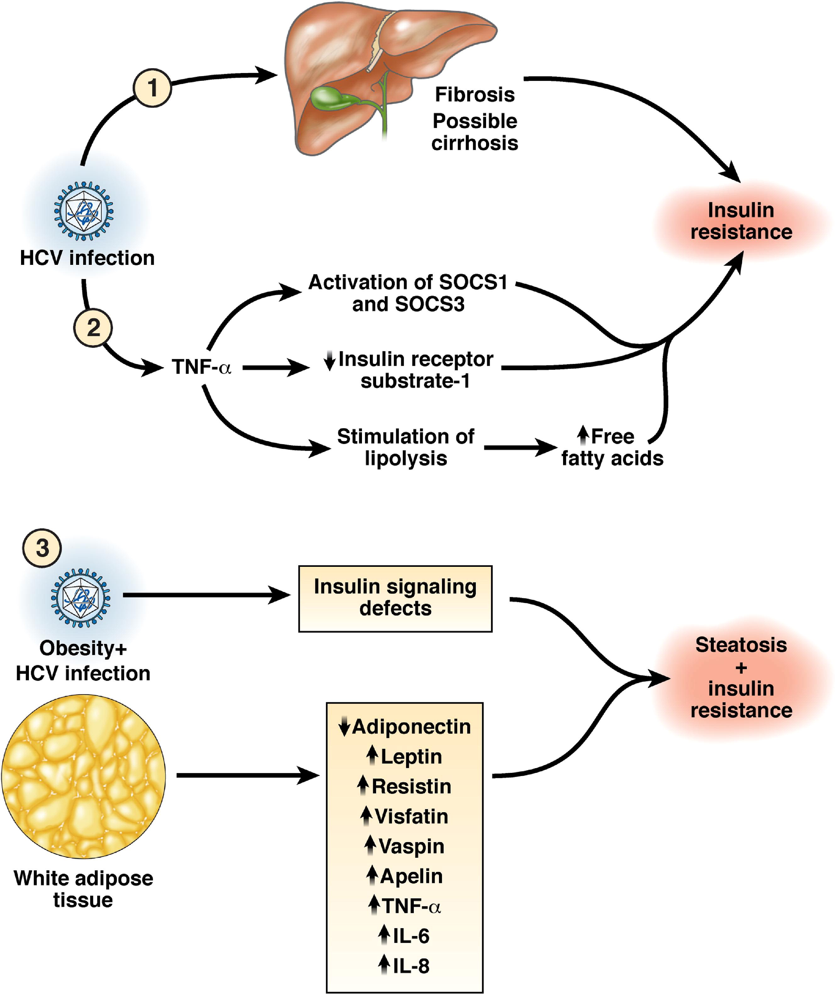 renal syndromes associated with nonsteroidal antiinflammatory drugs